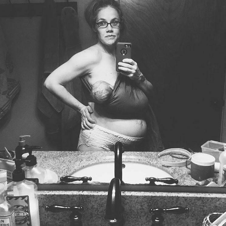 24 hr postpartum